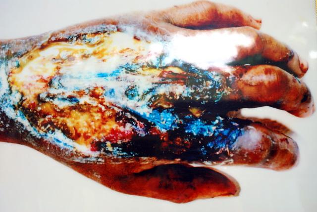 Такой рука становится после укуса кобры