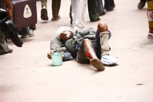 19.07.2009 изуродованный нищий: левой руки нет, свежие кровоточащие раны на голове иногах на рынке у Джама Масжид и Красного форта в Дели.