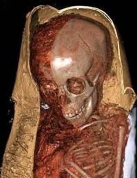 Якутская мумия
