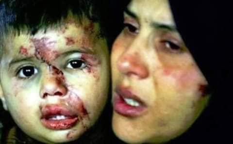 Среди жертв женщины и дети((